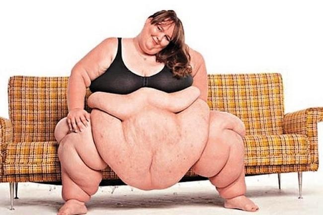 Сюзанна Эман Каса-Гранде - самая толстая женщина в мире