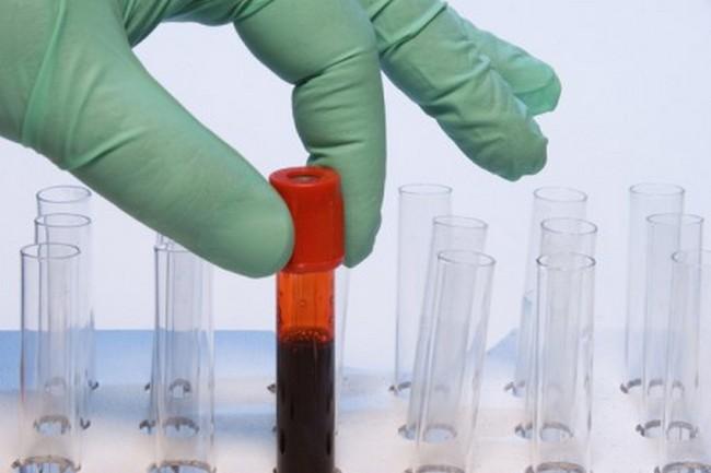 Бомбейскую кровь ученые открыли в 1952 году