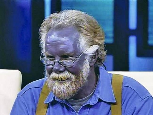 Синей кожей лица обладает житель Казани Валерий Вершинин