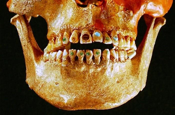 Древняя инкрустация зубов