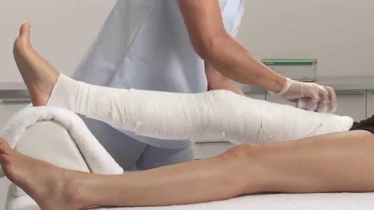 Перелом тазобедренной кости