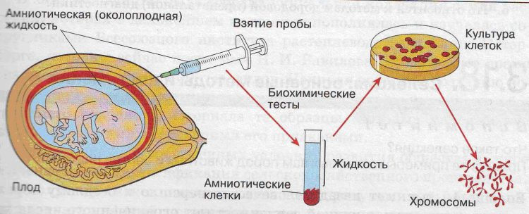 анализы