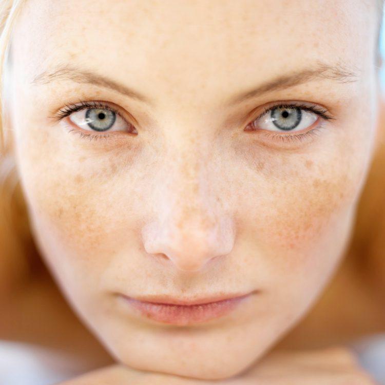 Как избавиться от веснушек и пигментных пятен на лице