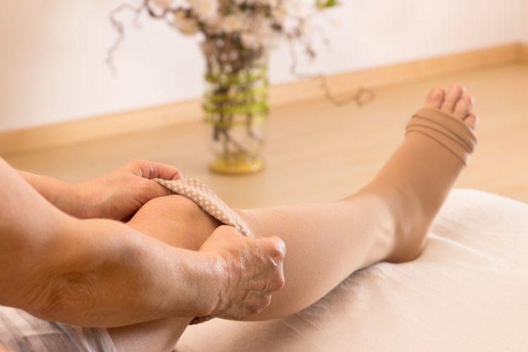 Методы лечения и профилактики варикоза