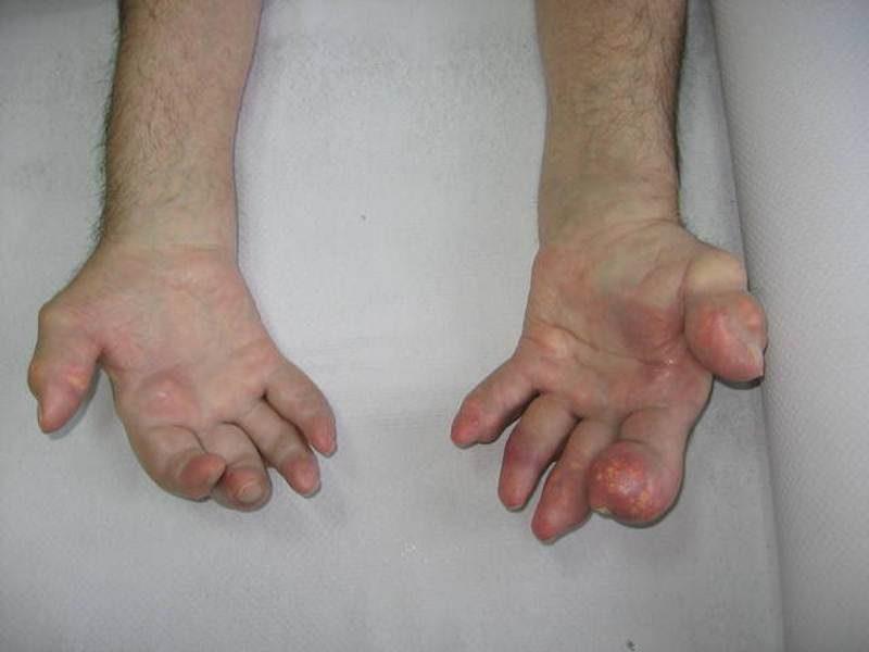 Подагра На Руках Лечение Диета. Подагра на руках: основные причины, характерные проявления, лекарственные средства и народные методы
