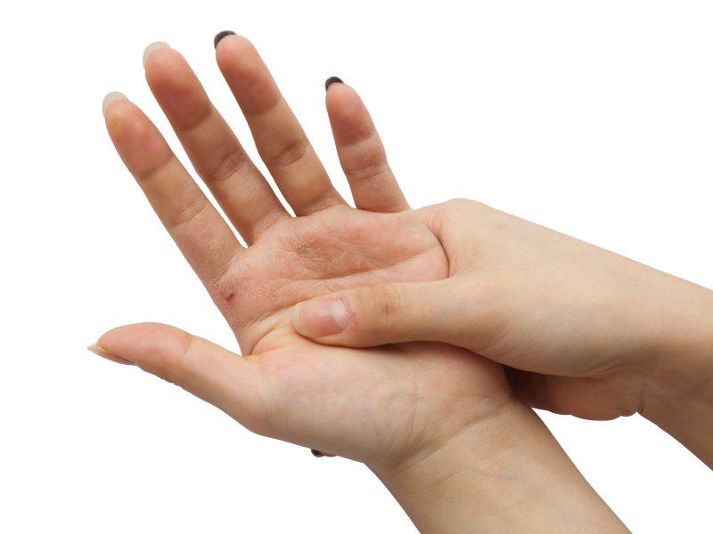 чешется левая рука