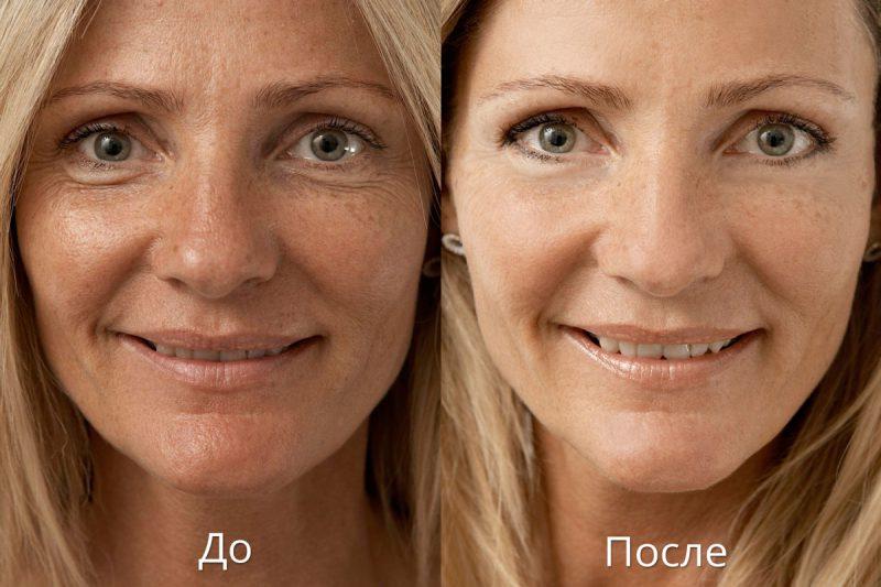 как убрать пигментацию с лица?