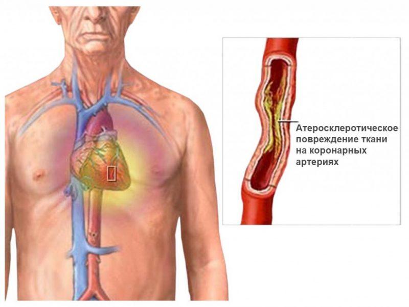 Первый симптомы стенокардии