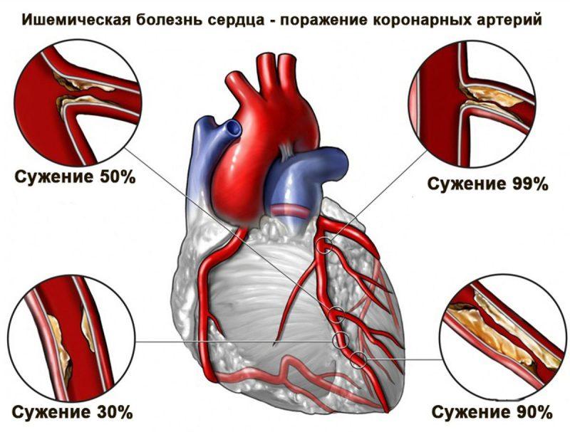 процесс ишемической болезни сердца