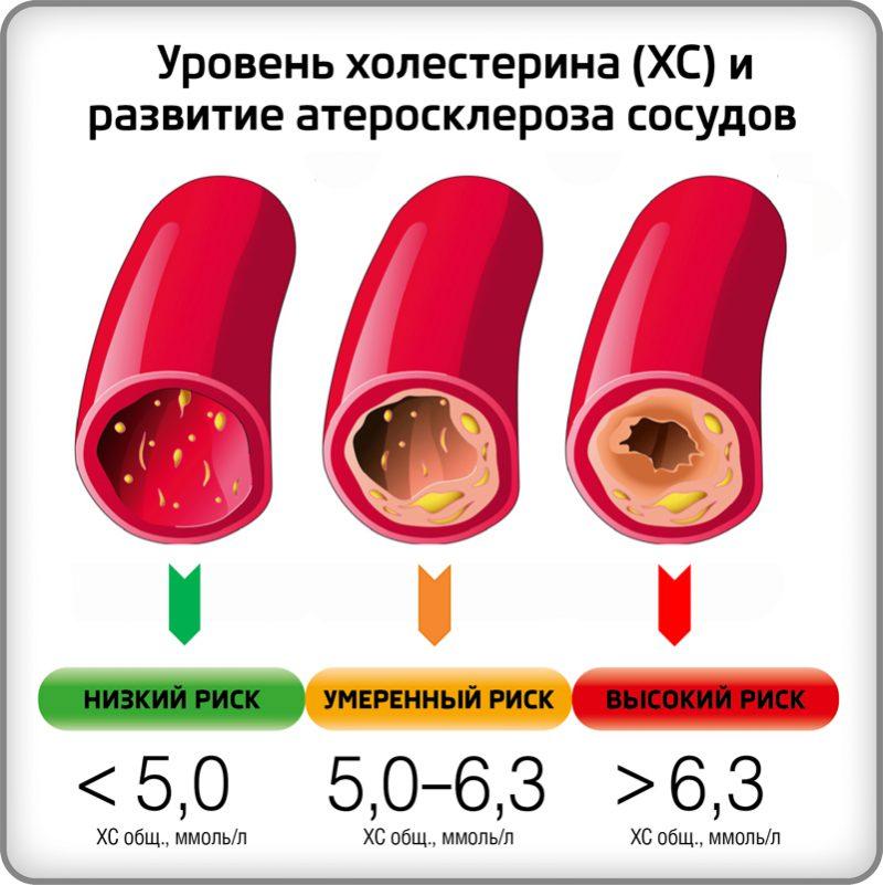 Холестерин в крови