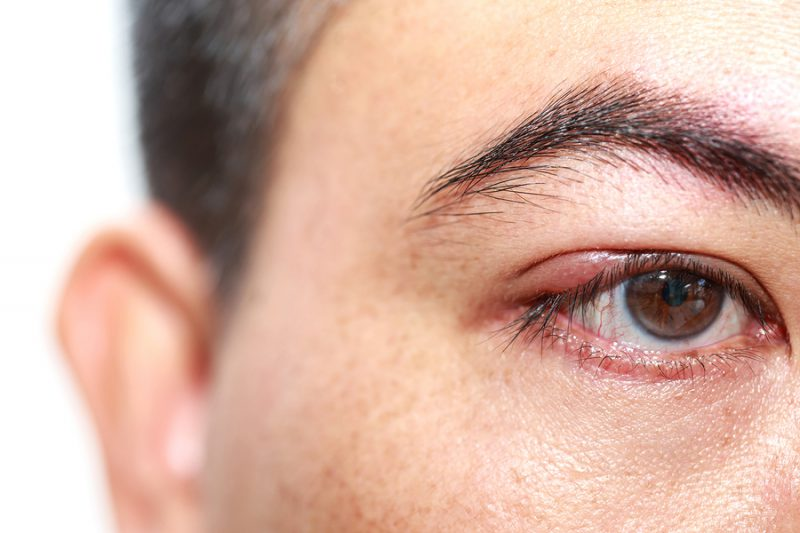 лечения ячменя на глазу