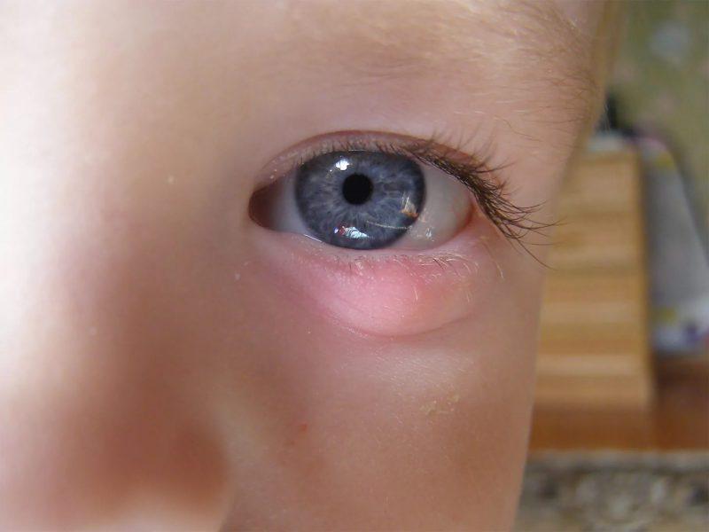 чем лечить ячмень у детей