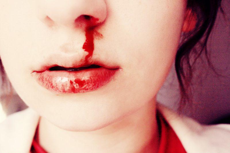 Местные причины носового кровотечения