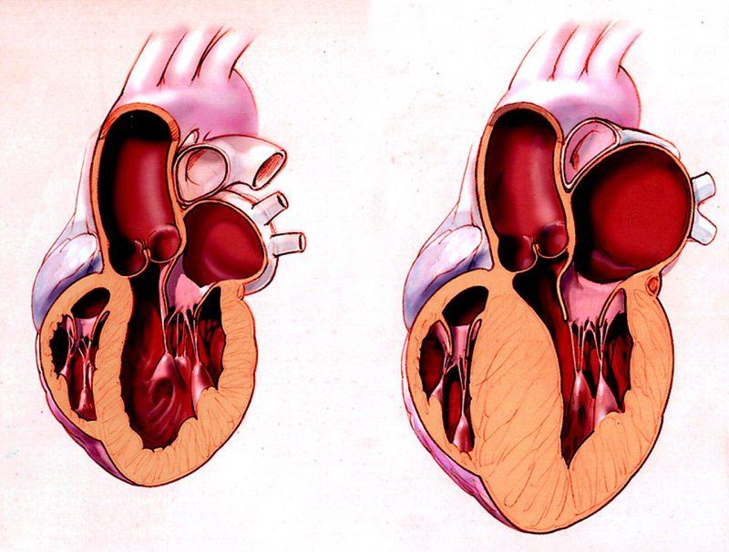 гипертрофия левого желудочка сердца что это и как можно лечить