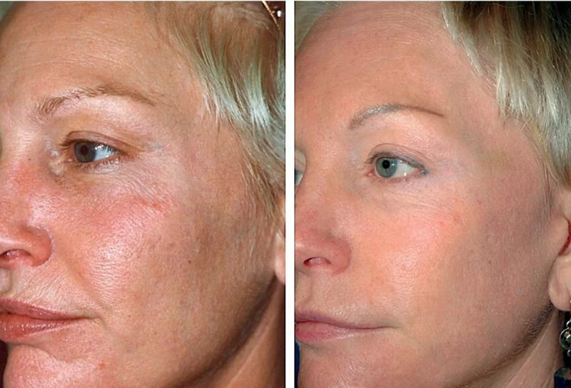 Изменения на лице после проведения мезотерапии