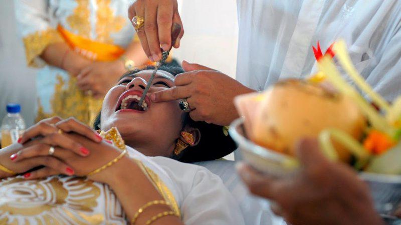 клыки перед свадьбой на бали