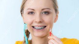 Распространенные стоматологические проблемы у пациентов