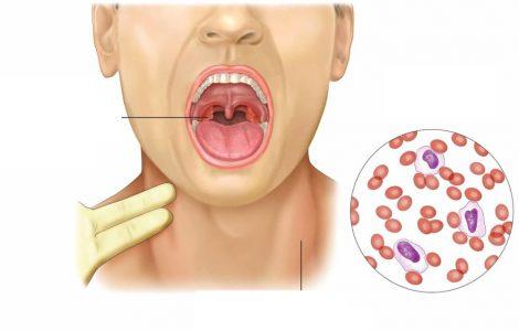 Что такое мононуклеоз: симптомы, диагностика и лечение