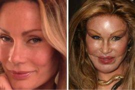 Неудачные пластические операции: фото до и после