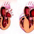 Гипертрофия левого желудочка сердца что это и как можно лечить?