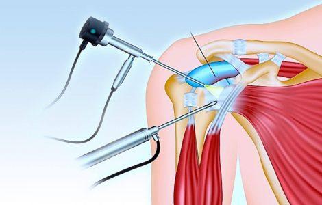 Износ плечевого сустава: поможет ли операция?