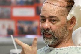 5 самых невероятных операций на голове