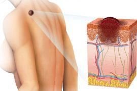 Диагностика и лечение меланомы