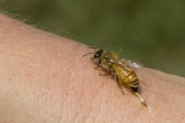 Укус осы, что делать?