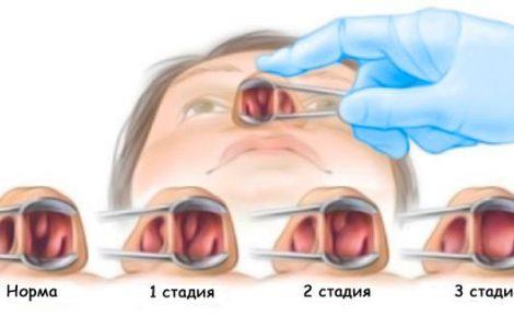 Почему нужно удалять полипы в носу