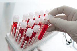 Анализ крови – виды и задачи исследований