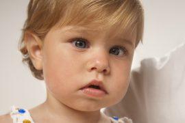 Косоглазие у ребёнка – причины и лечение