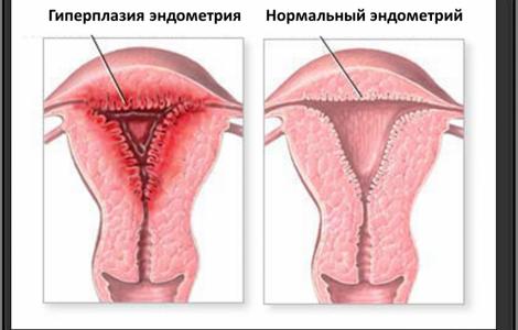 Что такое гиперплазия эндометрия?