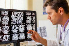 Сотрясение мозга: причины, симптомы и методы лечения