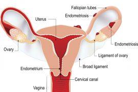 Эндометриоз: симптоматика, причины возникновения, виды лечения
